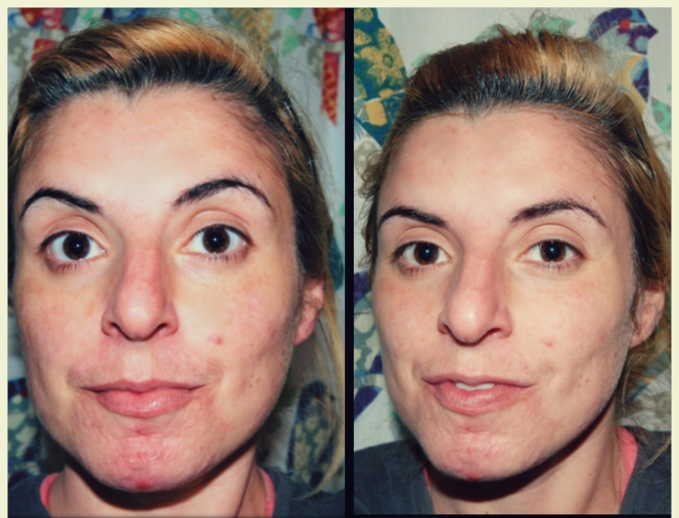 Masque Bar Luminizing Charcoal Peel-Off Mask Before/After:  Review by Beauty Explore Online